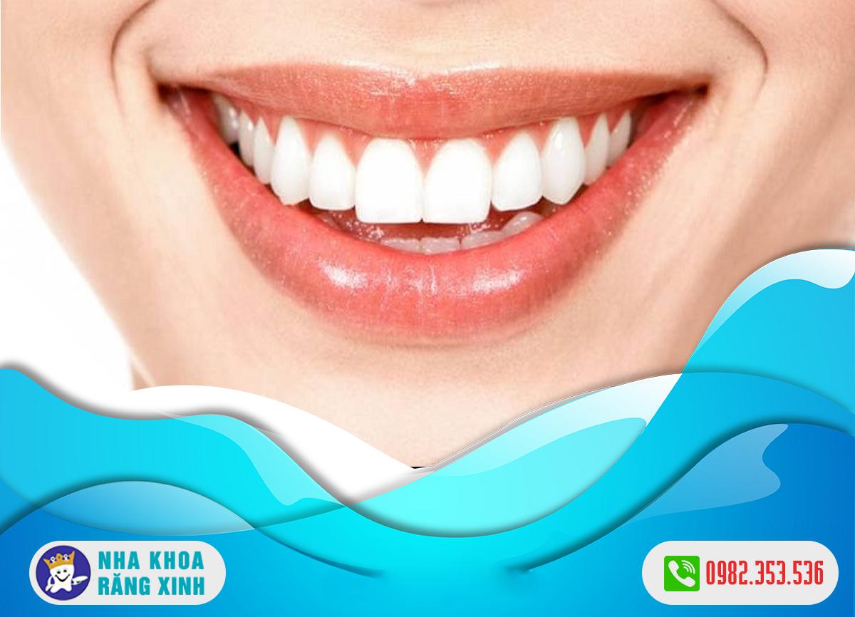 giá bọc răng sứ hiện nay là bao nhiêu