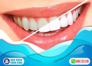 nha khoa tẩy trắng răng uy tín tại nghệ an