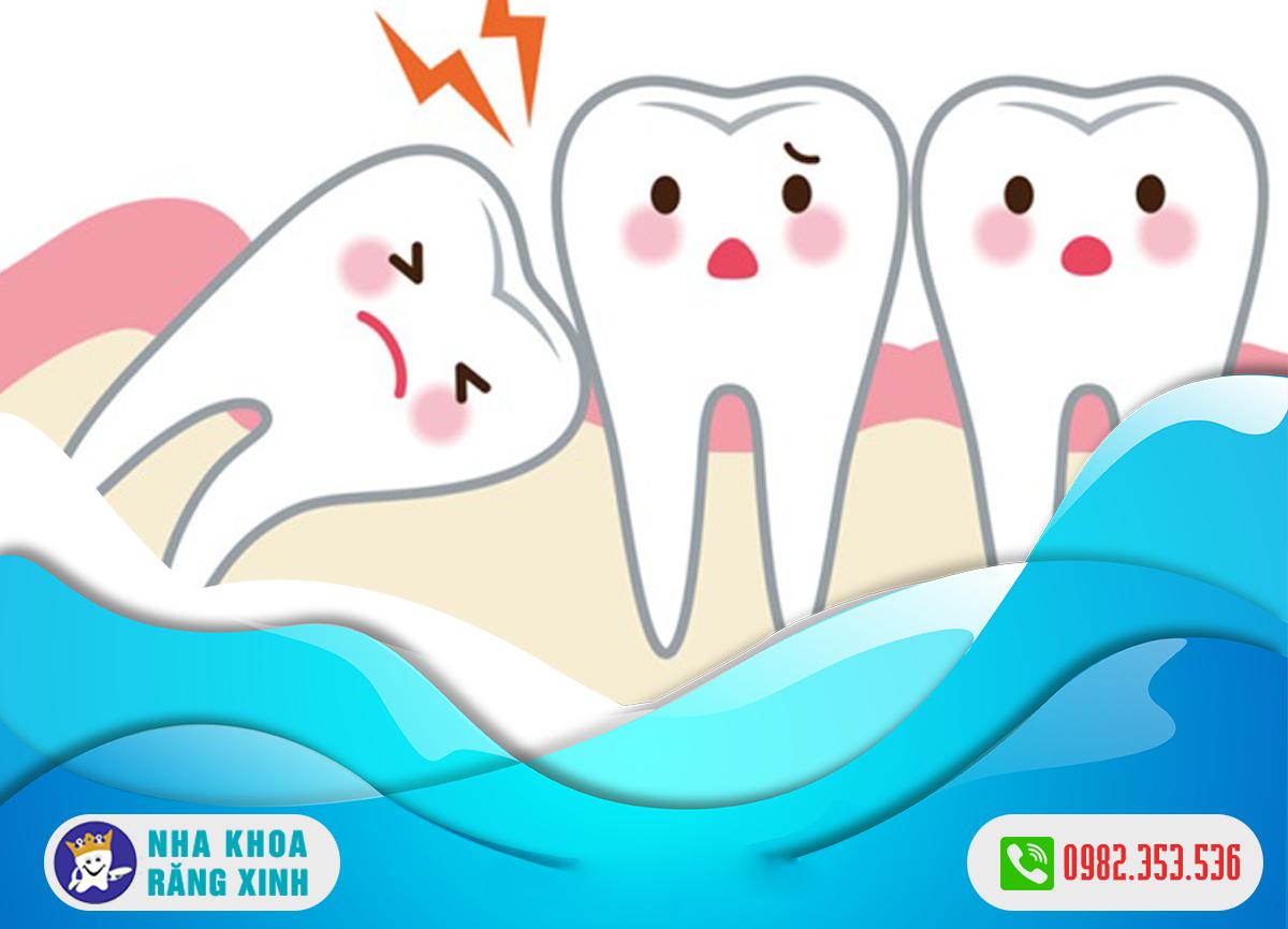 nhổ răng khôn an toàn nghệ an ở đâu