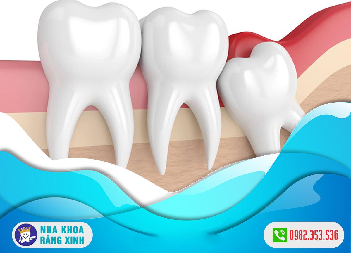 nhổ răng khôn an toàn tại nghệ an