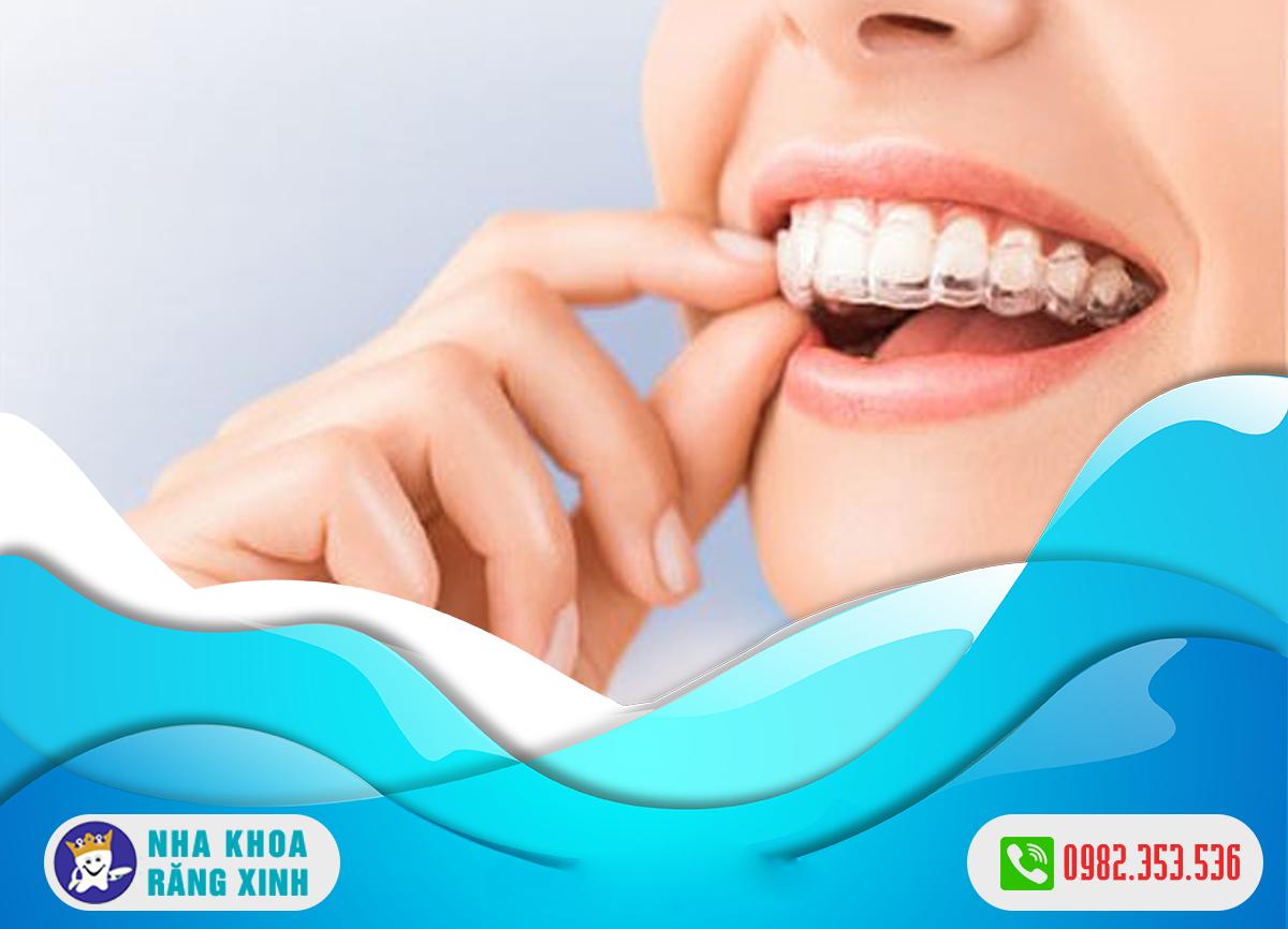 Giá niềng răng không mắc cài invisalign hiện nay bao nhiêu
