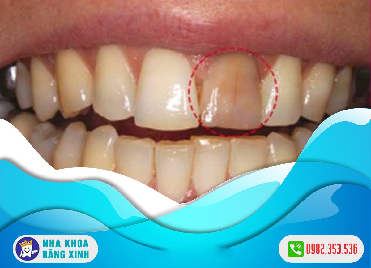 răng của bị chết tủy có nên nhổ bỏ không