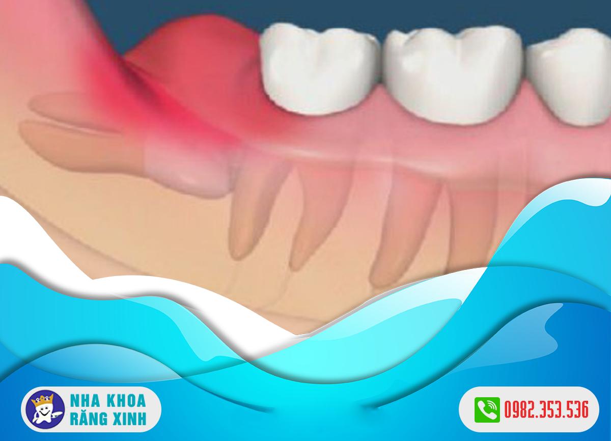 tác hại của răng khôn nằm ngang