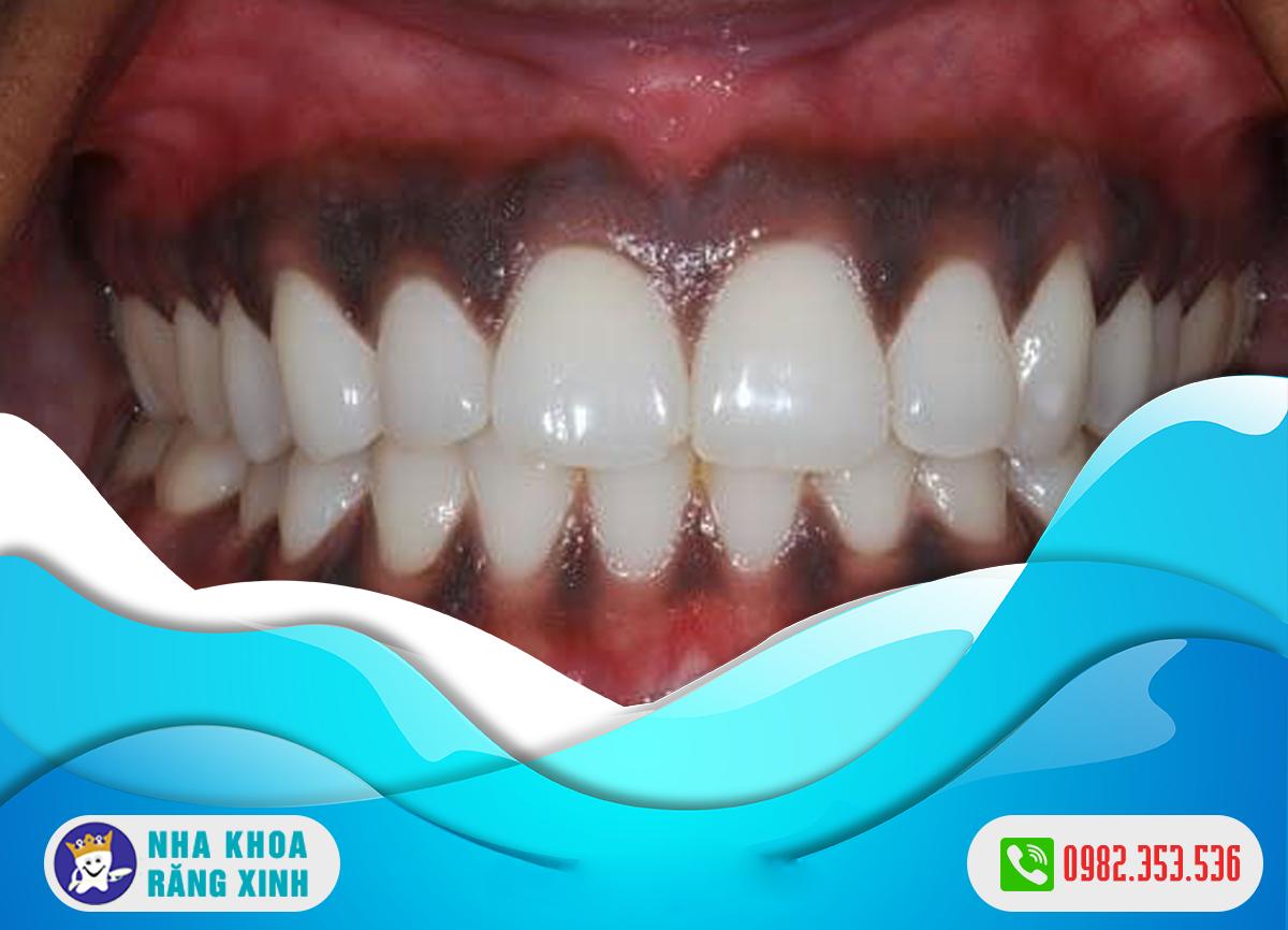 Nướu răng bị đen nguyên nhân do đâu ?