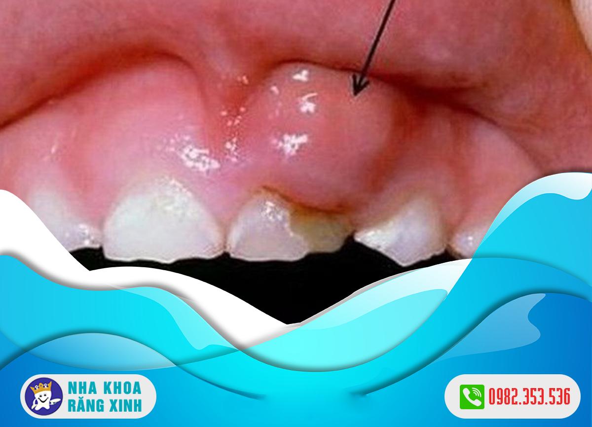 điều trị viêm nướu răng nổi hạch