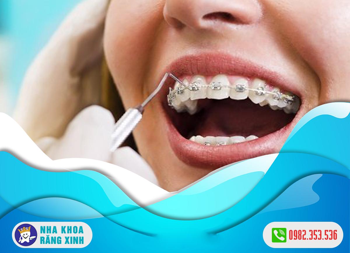 niềng răng bị tụt lợi nguyên nhân do đâu