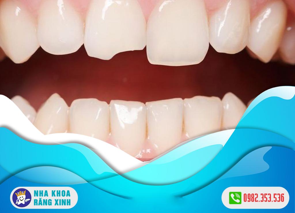 Trám răng mẻ hết bao nhiêu tiền ?