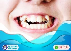 Răng mọc thừa có nguy hiểm không ?