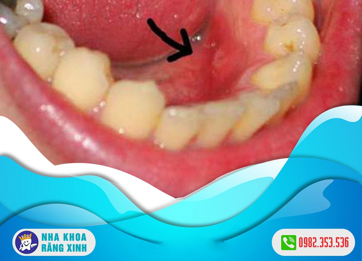 viêm nướu răng nổi hạch