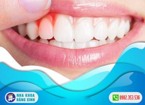 cách chữa trị dứt điểm chảy máu nướu răng