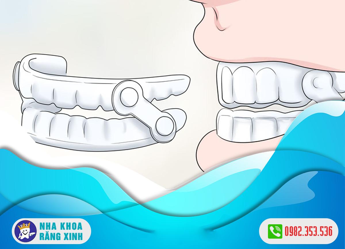 Máng chống nghiến răng bao nhiêu tiền