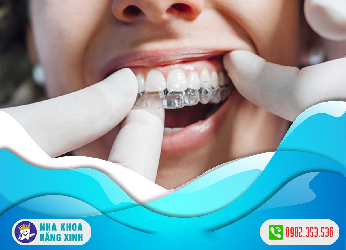Máng chống nghiến răng bao nhiêu tiền ?
