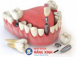cay-rang-implant-co-dau-khong-1-38o9n70qz2qilb205wks8w.jpg