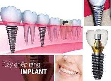 nha-khoa-nghe-an-cay-ghep-implant-353igmsjlfr5zaat1meio0.jpg